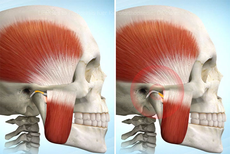 CMD = Craniomandibuläre Dysfunktion