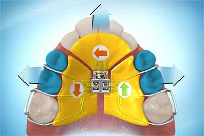 Aktive Zahnspangen - Platten