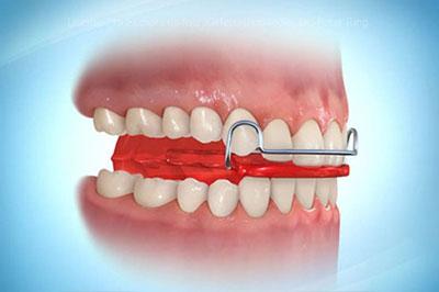Wachstumsregulierende Zahnspangen